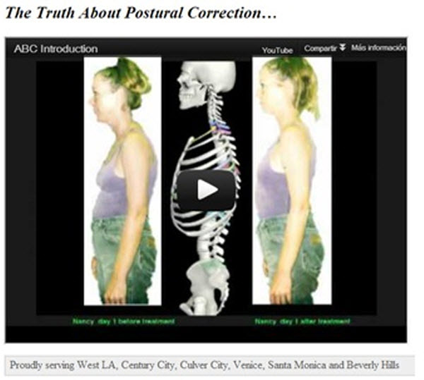the truth about postural correction